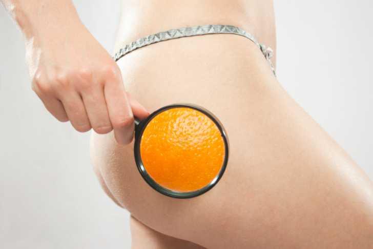 Как выиграть войну с «апельсиновой корочкой»