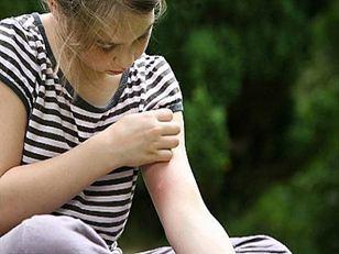 Как защититься от укуса насекомого?