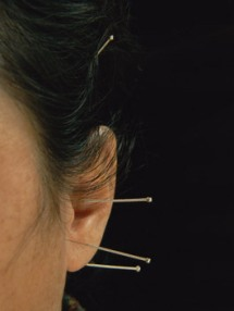 Аурикулотерапия - акупунктура уха