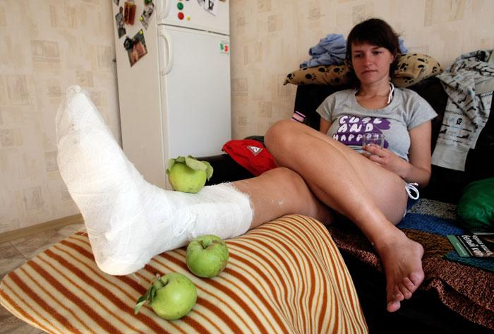 Первая помощь при травме лодыжки