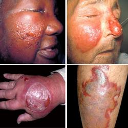 Рожистое воспаление. Причины, симптомы и лечение.