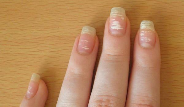 О чем говорят пятна на ногтях