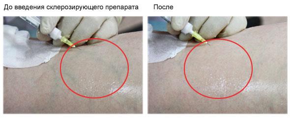 Варикозное расширение вен. Склеротерапия.