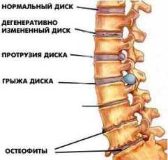 Что такое остеохондроз?