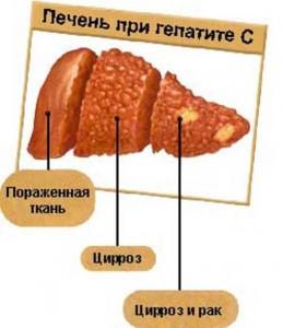 Гончарик т.а дифференциальная диагностика желтух