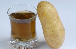 Лечение картофелем.
