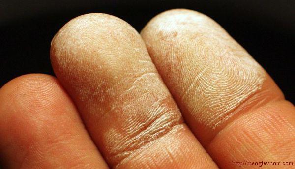 Как лечиться перекисью водорода