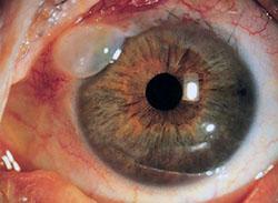 Глаукома: симптомы и лечение